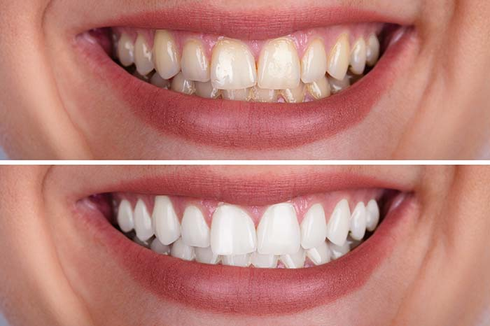 Banner image for Teeth Whitening page